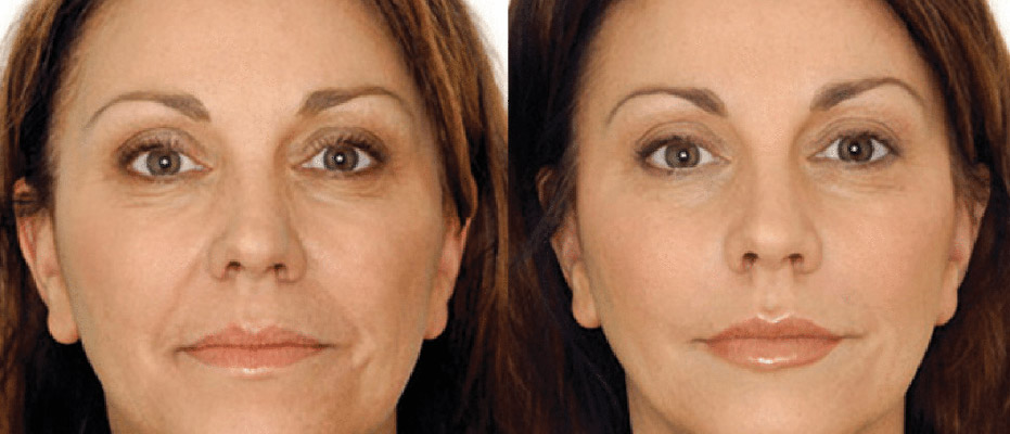 woman shown before and after microfacial toning